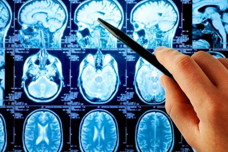 Consulta de Neurología - Hospital La Paloma